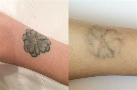 laser tattoo removal what it s really like to have a