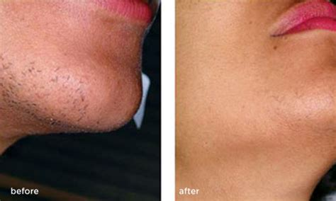 Ipl Power And Light by Laser Hair Removal Treatments Before Amp After Photos