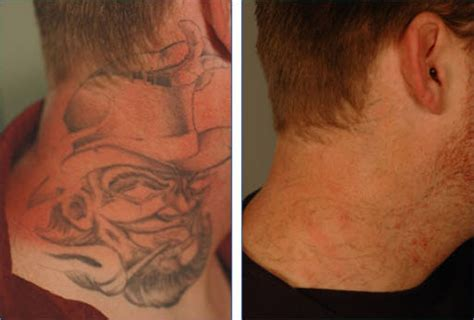 effacer son tatouage tattoos fr