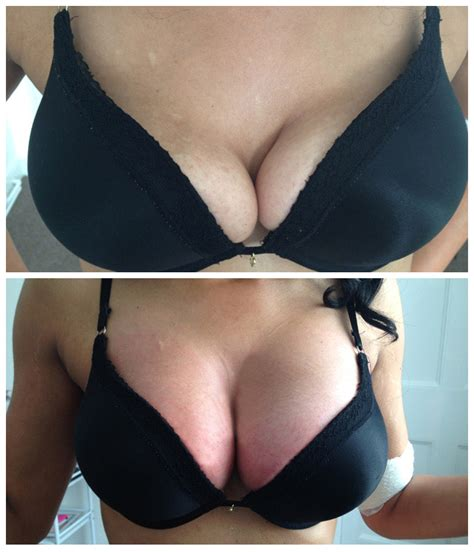 on breast breast enlargment the harley laser specialists