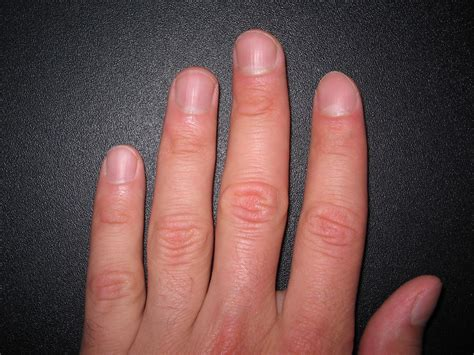 ногти это что такое ногти