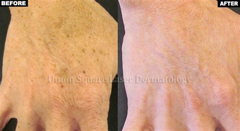 laser removal of pigmented lesionsl nyc sun spots
