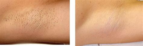best hair removal cream effective hair removal for men and women cliffys