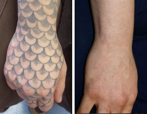 before amp after tattoo removal lexington ky inkundū