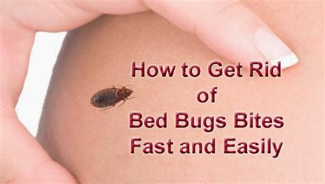 Get Rid Of Bed Bugs Fast by How To Get Rid Of Bed Bugs Bites Fast And Easily Arbkan