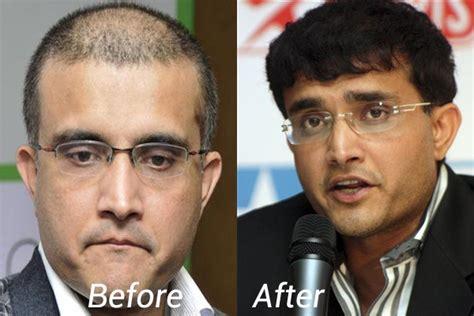 salman khan hair transplant cost top celebrities with hair transplant in india dark brown