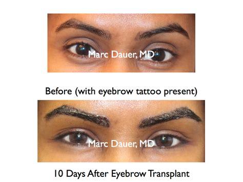 eyebrow transplant spiky hairs eyebrow transplant article dr marc dauer