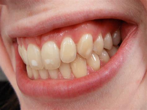 file dental fluorosis jpg wikimedia commons