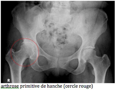 l arthrose de la hanche clinique drouot