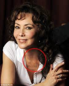bead like lump in breast image gallery lump near collarbone
