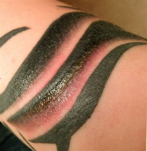 infected tattoo symptoms pictures how to treat healing