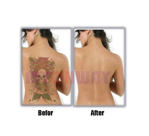 lt hf302 buy pro q switch yag laser machine tattoo