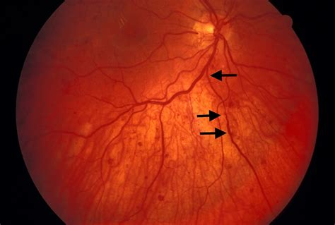 venous beading diabetesmanager diabetic retinopathy