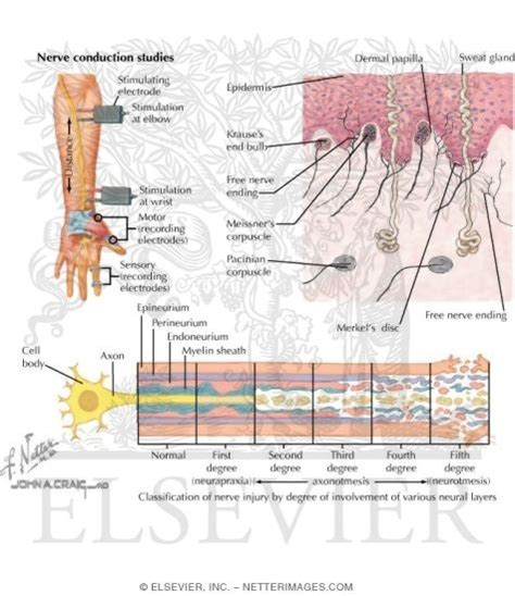 Nerve Conduction Studies. Ethernet Over Copper Vs T1 Dentist In Tigard. Bipolar Alternative Treatment. Data Analytics Degree Programs. Window Replacement Cost Gateway Dental Clinic
