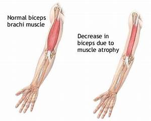 Muscle Atrophy - Causes, Symptoms, Treatment, Definition ...