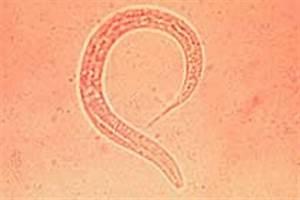 Larven In Der Erde : ancylostoma spp ~ Markanthonyermac.com Haus und Dekorationen