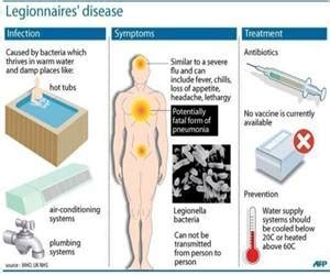 Legionnaires' Disease In The Us. Host Signs Of Stroke. Temple Signs. Baby Signs. Dcn Signs. Ks2 Signs. Laundromat Signs. Icu Signs. Hair Color Signs Of Stroke