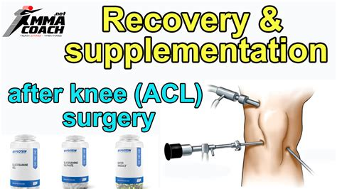 Recovery And Supplementation After An Knee Acl Surgery. Harleysville Auto Insurance Dui In Vermont. Website Marketing Techniques. Community Colleges In West Virginia. Sports Booking Software Pearl Hotel Frankfurt. What Can You Do With A Bachelors In Education. Carpet Cleaning Claremont Fixed Asset System. Narragansett Electric Company. Business School Colorado Chunky Diamond Rings