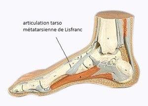 douleurs du milieu du pied chirurgien du pied