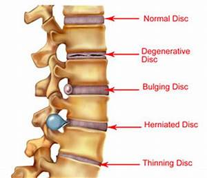 Signs and Symptoms of Bulging Disc - Bye Bye Lower Back Pain