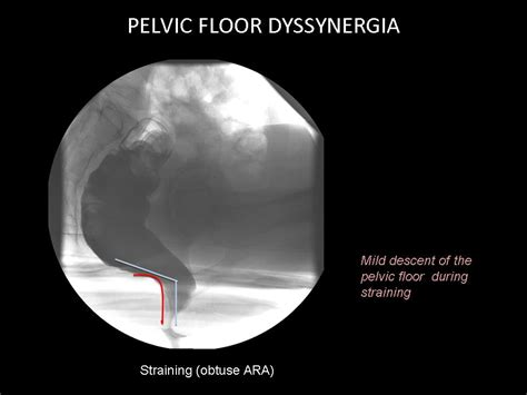 ecr 2012 c 0796 posterior pelvic floor disorders