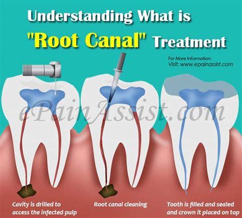 Root Canal Treatment & Post Root Canal Treatment Care