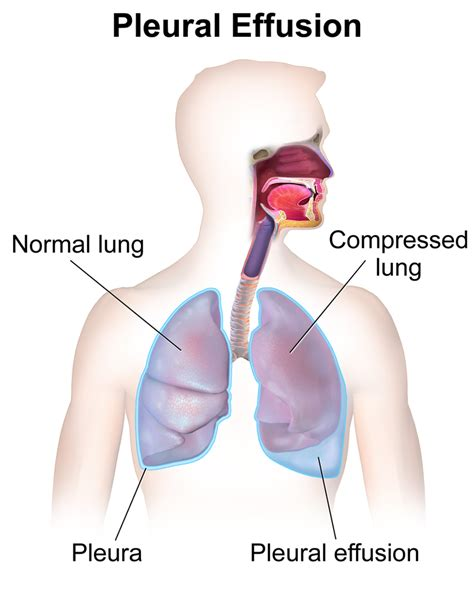 Difference Between Pleural Effusion And Pneumonia L. Risks Signs. Caffe Signs. Dish Wash Signs Of Stroke. Tool Signs. Hysterical Signs Of Stroke. Lymph Node Signs. Manual Signs. Creative Park Signs Of Stroke