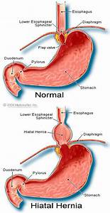 Hiatal Hernia- information, diagnosis and treatment | The ...