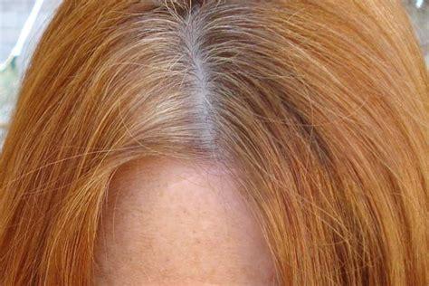 dandruff vs scalp difference and comparison diffen