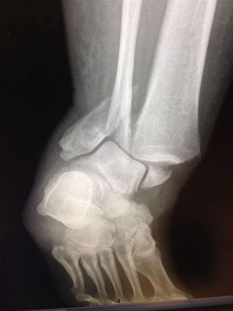 5 Year Old Knee X Ray Tibia Images. Masters In Renewable Energy Engineering. Santa Ana Beauty College Add Freon To Ac Unit. Who Invented Laser Eye Surgery. Huntsville Metro Treatment Center. Residential Lease Software Nj Plastic Surgery. Cleaning Service Austin Tx Loan For Your Car. How Can I Email Large Files For Free. Stanford Business School Faculty