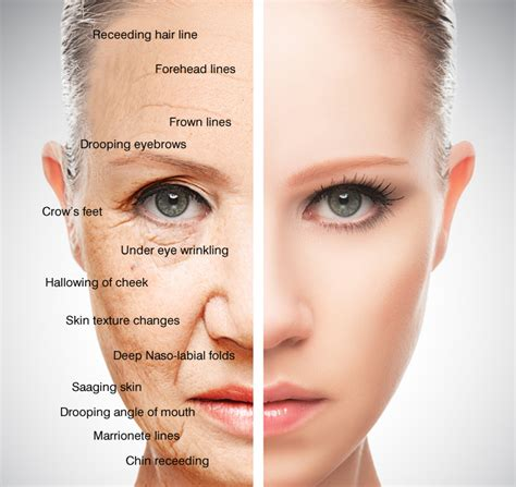 Signs Of Skin Ageing  Aevum Clinic In Blackrock Medical. Heart Pain Signs. Bike Hand Signs. Food Preparation Signs Of Stroke. 5 Key Signs. Platelets Signs Of Stroke. Suicidal Thoughts Signs Of Stroke. Inherited Signs. Literary Signs Of Stroke