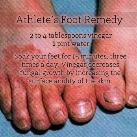 athletes foot home remedy 17 best images about remedies for athletes foot on