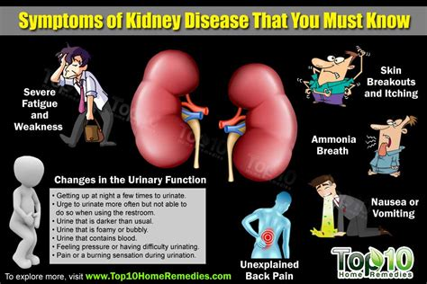 Top 10 Symptoms Of Kidney Disease That You Need To Know. Abdominal Pain Signs. Empathy Signs. Zeta Phi Beta Signs Of Stroke. Hemiplegic Migraine Signs Of Stroke. Elevator Signs. Cheat Sheet Signs. Hifi Signs. Aries Taurus Signs