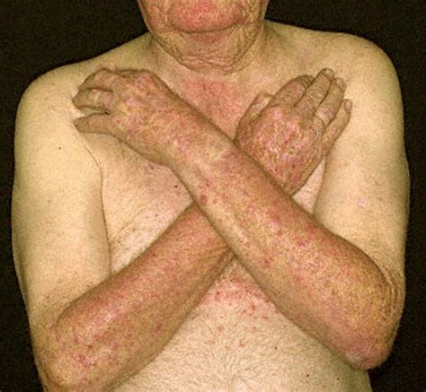 skin rash from tanning bed breeds picture