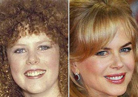 Before And After Fame  Nicole Kidman  Movies, Tv, Actors