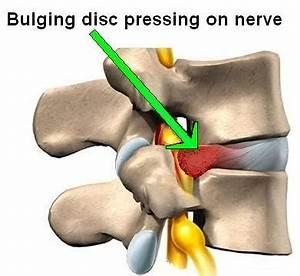 Bulging and Herniated Discs   AZ Pain Centers Blog