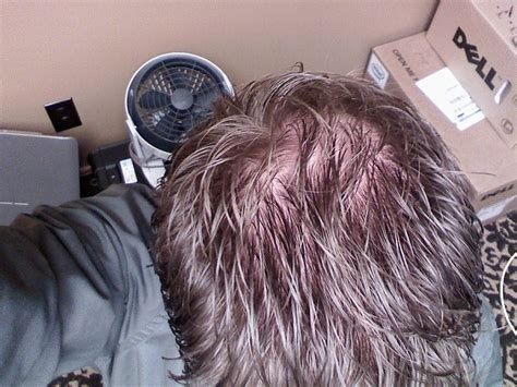 dresser rand olean ny human resources 100 rogaine shedding after 1 month rogaine hair
