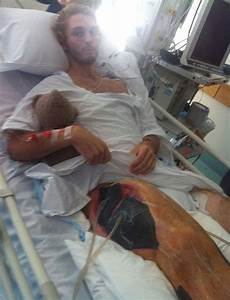 Dylan Skilton: Surfer's leg swells to FOUR times normal ...