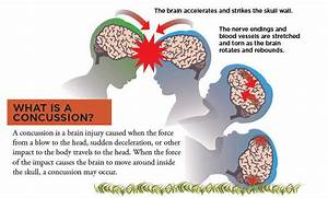 Concussion Guide | UCSF Benioff Children's Hospital Oakland