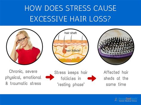 3 top causes why your hair is falling out and what you can do about it beyond health clinics