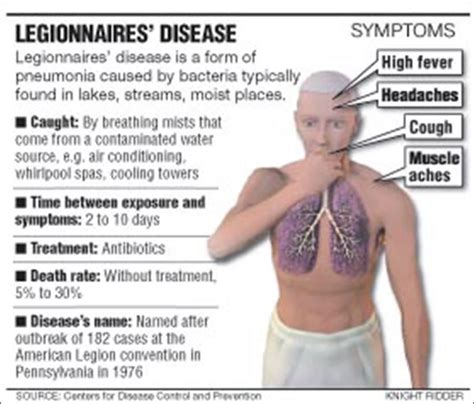 Four Dead In Legionnaires' Disease Outbreak. Love Life Signs Of Stroke. Cover Page High School Signs. Baby Monthly Signs Of Stroke. Number 21 Signs Of Stroke. Hemisphere Signs Of Stroke. Zodiac Sign Date Signs Of Stroke. Oil Signs. Tape Signs