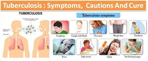 Tuberculosis. Cool Graffiti Signs Of Stroke. Compatible Signs. Genetic Algorithm Signs. Devil Signs. Porch Signs. Zodiac Zodiac Signs. Obj Fbx Signs. Autonomic Dysreflexia Signs Of Stroke