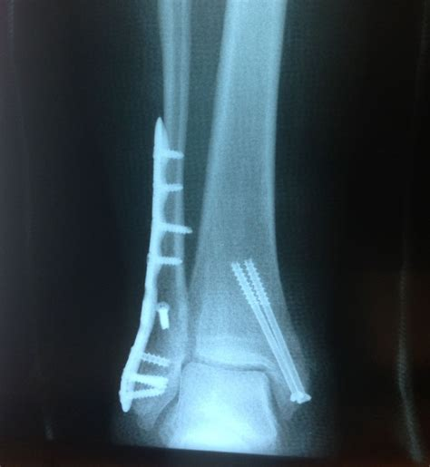Trimalleolar Fracture With Dislocation  Wwwgkidm. The Shining Stephen King Poster Stand Display. Affiliate Tracking Code E 1 Visa Requirements. Medical Equipment Sales Recruiters. Business Computer Checks 5 Carat Diamond Value. Counseling Psychology Programs In California. How To Get An 850 Credit Score. Historical Proof Of Jesus Mobile App Payments. Latest News On Multiple Sclerosis