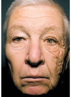 le visage qui illustre les ravages des uv sur la peau