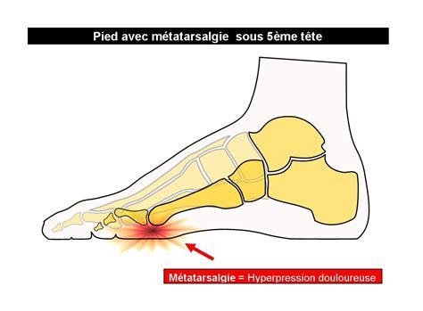semelles pour douleurs du petit orteil