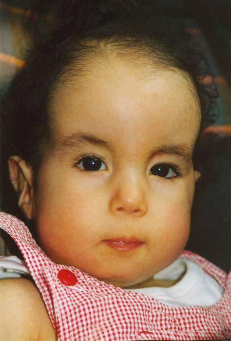 Jaëls Welt  Trisomie 18, 13 Jahre voller Lebensfreude