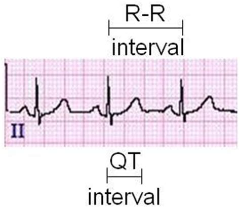 qt interval on a 12 lead tracing learntheheart