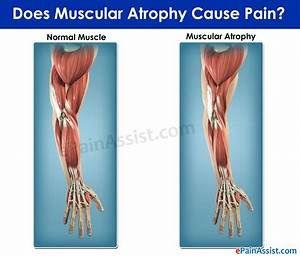 Muscular Atrophy|Causes|Symptoms|Treatment|Diet