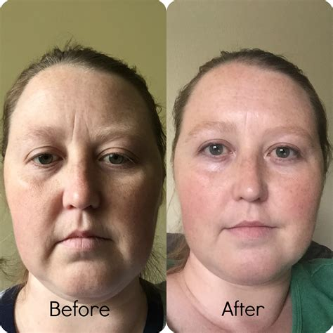 Timeless Anti Wrinkle Serums  Review  Amundsen House Of