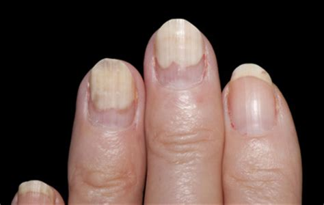 white spots on toenails from nail 2015 best auto reviews